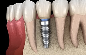 dental implant inserted into jawbone
