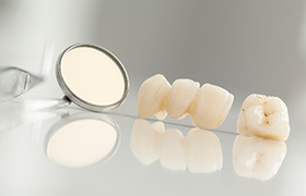 Dental crown and bridge prior to placement