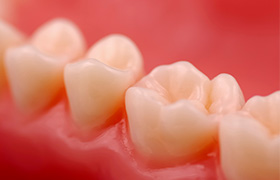 Teeth with natural looking fillings