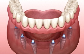 Model of implant-retained dentures in DeLand