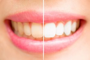 Woman's teeth half whitened.