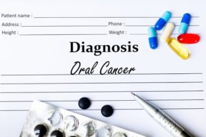 oral cancer diagnosis