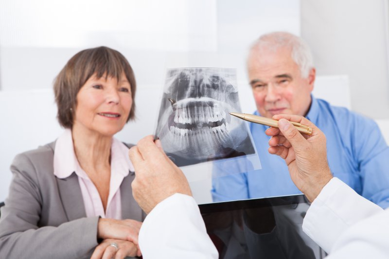 Older couple learning about dental implant myths